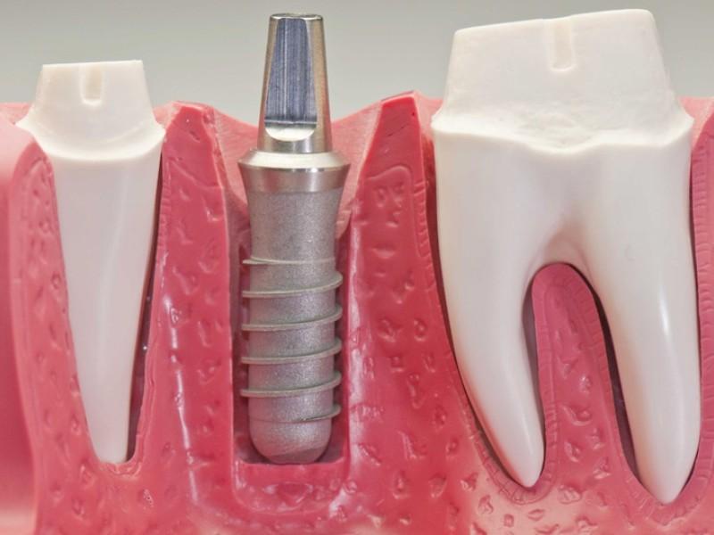 implantologia-guidata-carbone-dentista