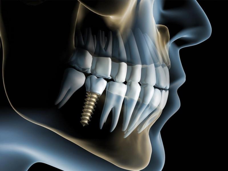 implantologia-studio-dentistico-carbone